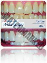 crest-whitestrips-results