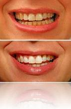 teeth-before-after-2