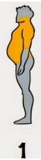 6-TIPURI-DE-OBEZITATE-1