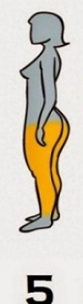 6-TIPURI-DE-OBEZITATE-5