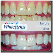 crest-whitestrips-results